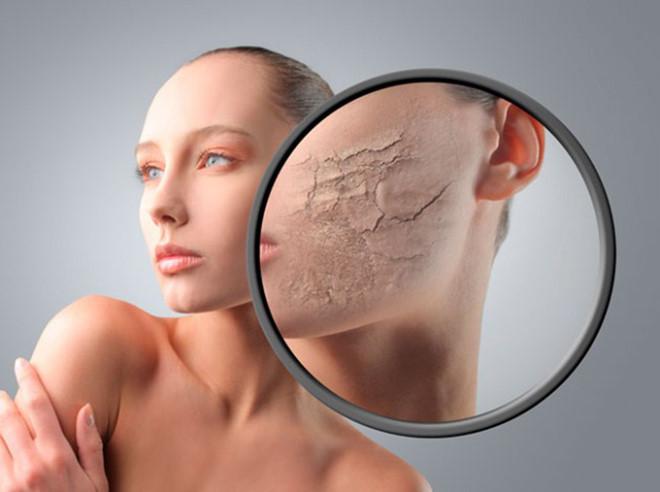 Thiếu hụt độ ẩm cũng sẽ làm da không còn độ đàn hồi như trước và sớm bị lão hóa
