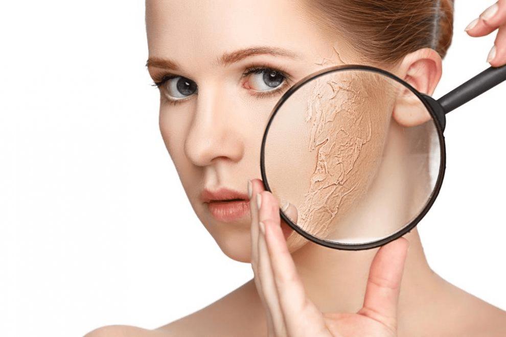 Uống ít nước là một trong những nguyên nhân khiến da bạn khô đi trông thấy