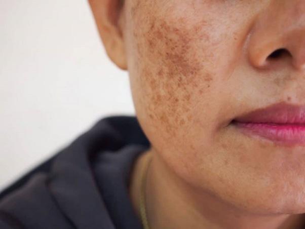 Nám da là hiện tượng làn da xuất hiện những đốm tròn sậm màu như màu vàng, màu nâu, màu nâu đen…