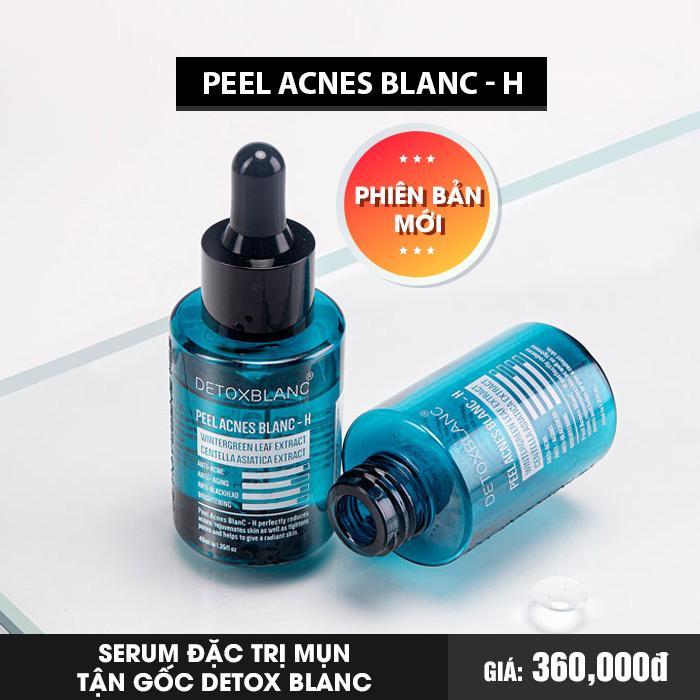 Serum đặc trị mụn tự nhiên Detox Blanc - PEEL ACNES BLANC - H