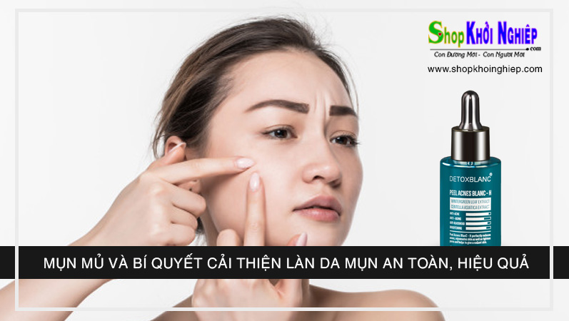 Mụn mủ và bí quyết cải thiện làn da mụn an toàn, hiệu quả