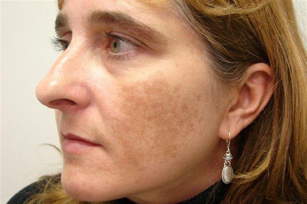 Nám mảng tạo thành từng mảng tối trên bề mặt da