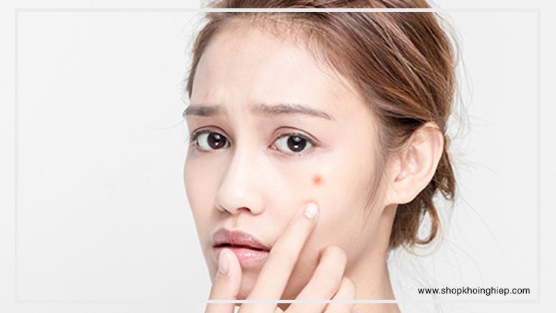 Sử dụng thiết bị điện tử nhiều khiến da dễ nổi mụn